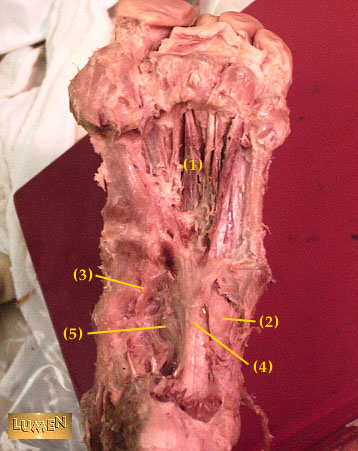 Foot 5 Dissection