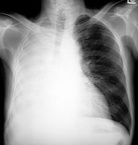 how to get rid of trapped air in your lungs