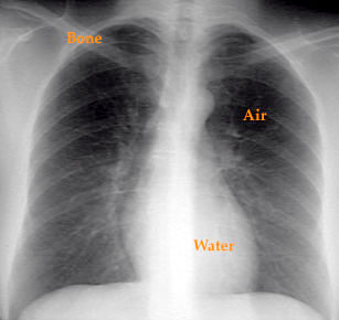 Spot On Lung Chest X-ray