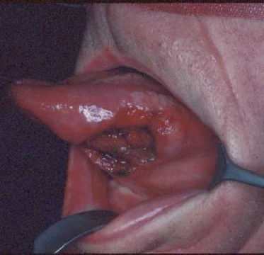 Cat Cancer Herpes On The Tongue Pictures Image.