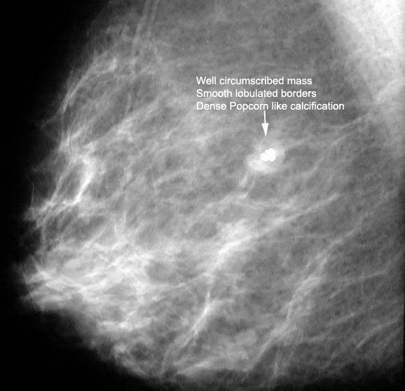 What Is The Classical Appearance Of Cyst On Mammography?