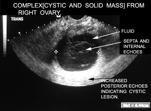 how to read ultrasound ovary