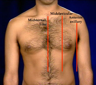 midsternal line a vertical line down the middle of sternum ...