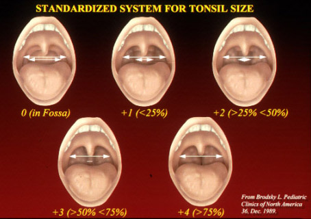 Score Tonsil Size Related Keywords Suggestions Score Tonsil Size