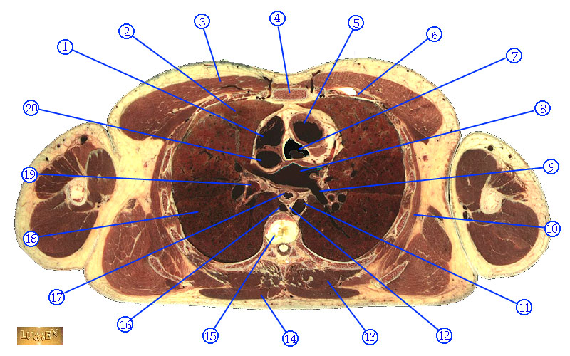 2053041 further Sonotutorial The Fast Part 2 Left Upper Quadrant Being Right With The Left furthermore Syringomyelia Symptoms together with 12185760 together with 6320584016. on thoracic cavity